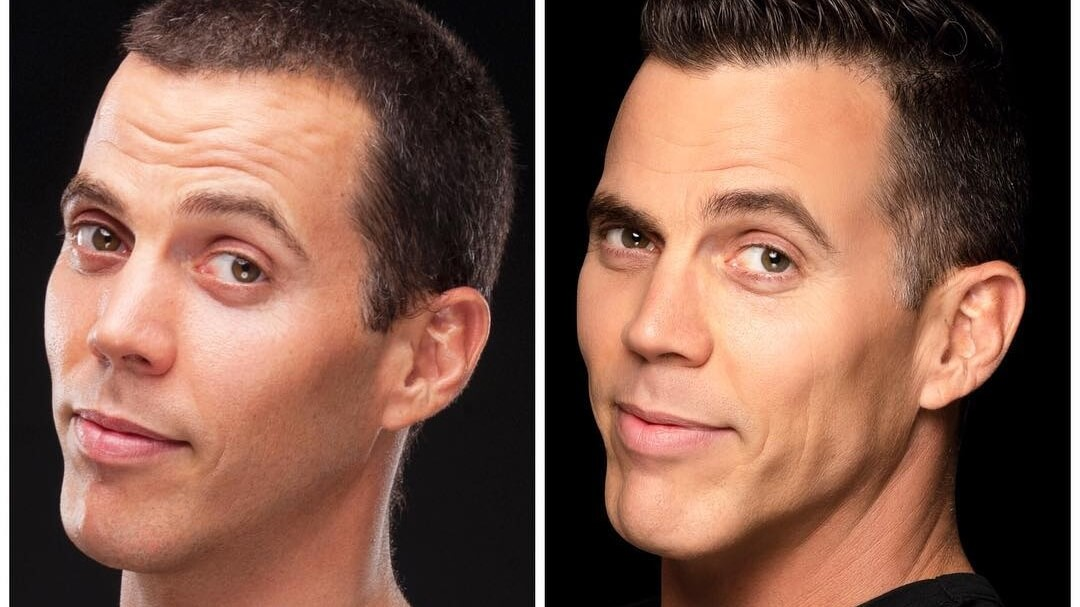 The Vegan Diet is Reversing the Aging Effect on Jackass's Steve-O